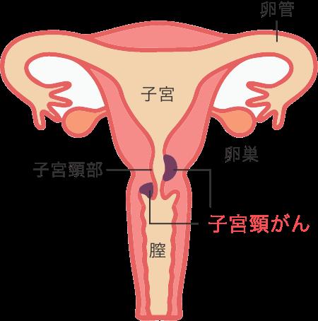 子宮頸がん検診