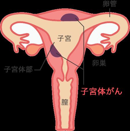 子宮体がん検診